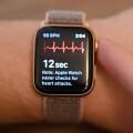Apple Watch 開放更新!ECG 心電圖功能來了
