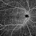 專註高端眼科影像設備,「視微影像」完成超億元B輪融資